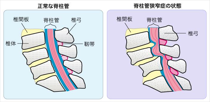 脊柱管狭窄症の原因