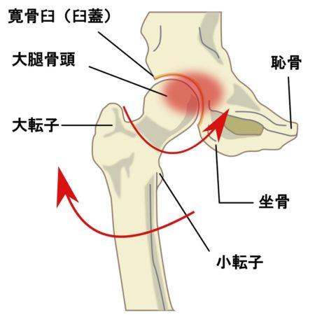 股関節の付け根が痛む原因